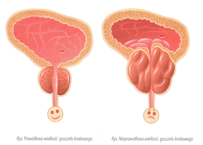 erekcja prostaty jest zwiększona